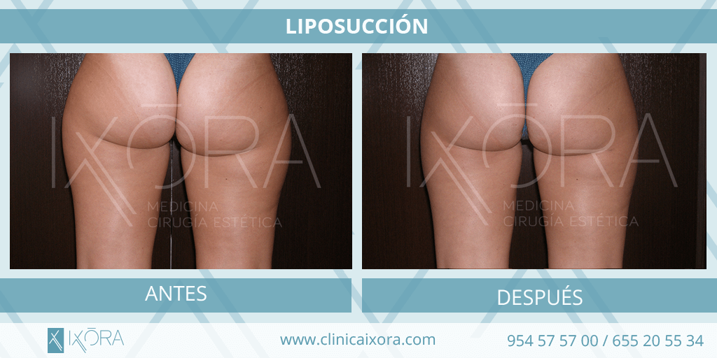 liposuccion_2
