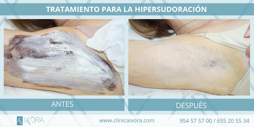 tratamiento para la hipersudoracion
